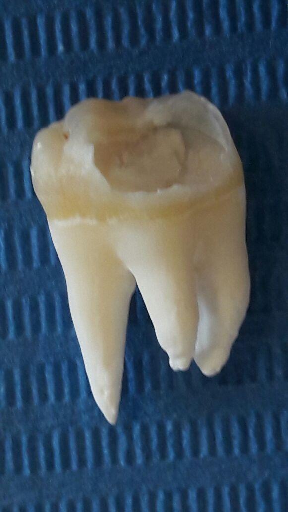 dentista-puletti-foto-dente-del-giudizio